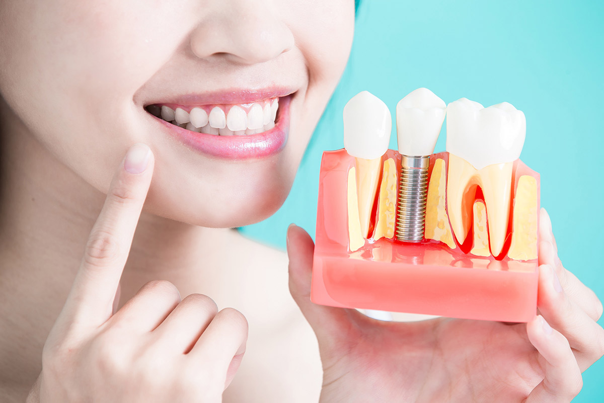 We provide the most advanced treatments for replacing a tooth with a dental implant