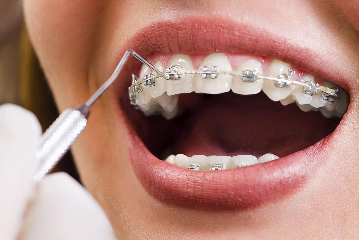 Dentistes spécialisés en orthodontie à Carouge, Genève
